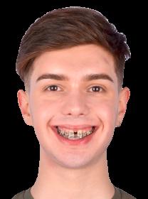 Исправление неправильного прикуса и ошибок ортодонта, Украина, Киев, 28 лет